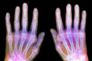 Rheumatoid-arthritis-of-the-hands-X-ray-2354547